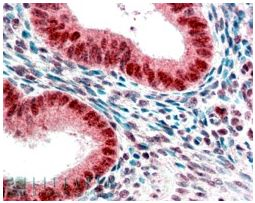 Immunohistochemistry (Formalin/PFA-fixed paraffin-embedded sections) - HP1 alpha antibody (ab77256)