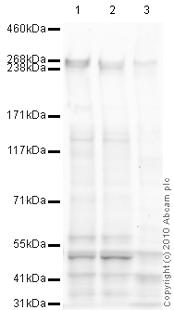 Western blot - ABCA4 antibody [3F4] (ab77285)