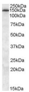 Western blot - Anti-MRP5 antibody (ab77369)