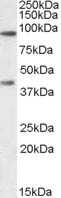 Western blot - Anti-ABCB5 antibody (ab77549)