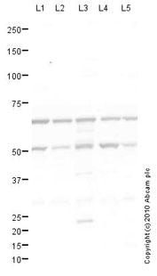 Western blot - TCHP antibody (ab77622)