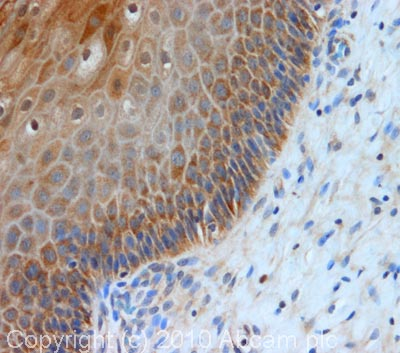 Immunohistochemistry (Formalin/PFA-fixed paraffin-embedded sections) - TCHP antibody (ab77622)