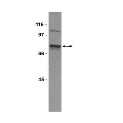 Western blot - WAVE 1 antibody (ab77696)