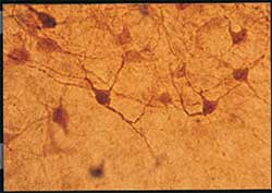 Immunohistochemistry (PFA perfusion fixed frozen sections) - ADA antibody (ab77756)