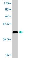 Western blot - ARFIP1 antibody (ab77783)