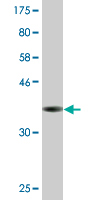 Western blot - EIF2S2 antibody [leave blank] (ab77784)