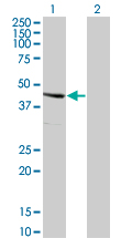 Western blot - SERPINE2 antibody [leave blank] (ab77788)