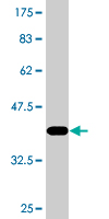 Western blot - DSN1 antibody [Not required] (ab77791)