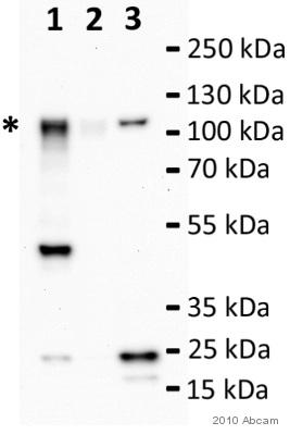 Western blot - SEL1L antibody (ab78298)