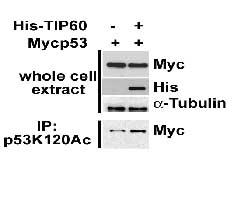 Western blot - p53 (acetyl K120) antibody [10E5] (ab78316)