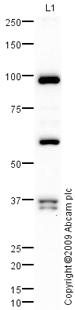 Western blot - LRDD antibody (ab78389)