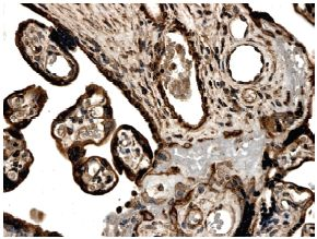Immunohistochemistry (Formalin/PFA-fixed paraffin-embedded sections) - Activin Receptor Type IA antibody [MM0052-9J17] (ab78414)