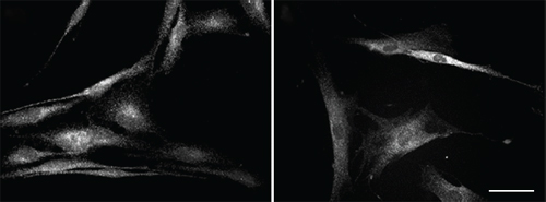 Immunocytochemistry/ Immunofluorescence - Anti-TGF beta Receptor II antibody [MM0056-4F14] (ab78419)