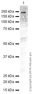 Western blot - TGF beta Receptor II antibody [MM0056-4F14] (ab78419)