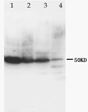 Western blot - CCR6 antibody (ab78429)