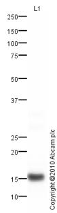 Western blot - Prealbumin antibody (ab78548)
