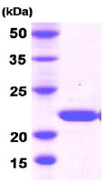 SDS-PAGE - Dhh protein (His tag) (ab78682)