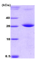 SDS-PAGE - PPM1G protein (His tag) (ab78699)