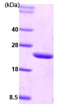 SDS-PAGE - CIB1 protein (His tag) (ab78759)