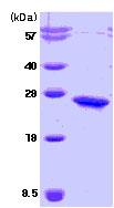 SDS-PAGE - Casein Kinase 2 beta protein (Human) (ab78793)