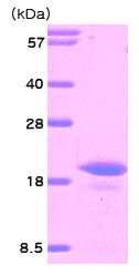 SDS-PAGE - IL16 protein (His tag) (ab78836)
