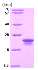 SDS-PAGE - IL1 beta protein (His tag) (ab78839)