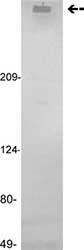 Western blot - Factor VIII antibody [GMA-012] (ab78852)