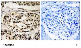 Immunohistochemistry (Formalin/PFA-fixed paraffin-embedded sections) - Cyclin C (phospho S275) antibody (ab78868)