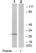 Western blot - MARCKS antibody (ab78885)