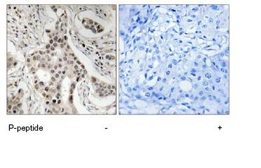 Immunohistochemistry (Formalin/PFA-fixed paraffin-embedded sections) - KAT13C / NCOA2 (phospho S736) antibody (ab78899)