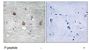 Immunohistochemistry (Formalin/PFA-fixed paraffin-embedded sections) - TOB (phospho S164) antibody (ab78915)