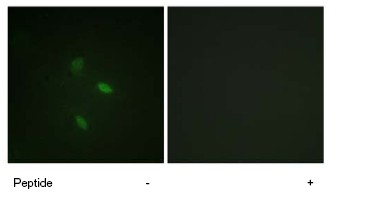 Immunocytochemistry/ Immunofluorescence - Cyclin E2 antibody (ab78941)