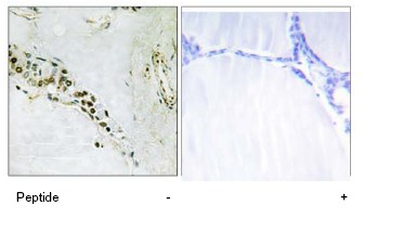 Immunohistochemistry (Formalin/PFA-fixed paraffin-embedded sections) - Cyclin E2 antibody (ab78941)