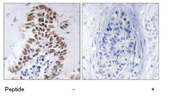 Immunohistochemistry (Formalin/PFA-fixed paraffin-embedded sections) - ZIP Kinase antibody (ab78943)