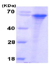 SDS-PAGE - SNPH protein (His tag) (ab79146)