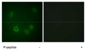Immunocytochemistry/ Immunofluorescence - SCNN1B (phospho T615) antibody (ab79172)