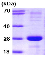 SDS-PAGE - SNAP23 protein (Human) (ab79180)