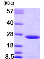 SDS-PAGE - BLVRB protein (Human) (ab79183)