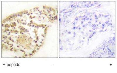 Immunohistochemistry (Formalin/PFA-fixed paraffin-embedded sections) - Vimentin (phospho S83) antibody (ab79189)