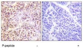 Immunohistochemistry (Formalin/PFA-fixed paraffin-embedded sections) - MST1/MST2 (phospho T183) antibody (ab79199)