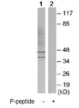 Western blot - Anti-Caspase-9 (phospho Y153) antibody (ab79202)