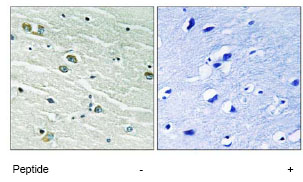 Immunohistochemistry (Formalin/PFA-fixed paraffin-embedded sections) - MER + SKY antibody (ab79223)