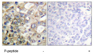 Immunohistochemistry (Formalin/PFA-fixed paraffin-embedded sections) - MUC1 (phospho Y1229) antibody (ab79226)