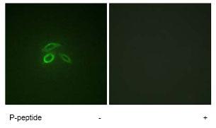 Immunocytochemistry/ Immunofluorescence - MUC1 (phospho Y1229) antibody (ab79226)