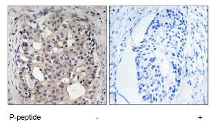 Immunohistochemistry (Formalin/PFA-fixed paraffin-embedded sections) - Cdc25A (phospho S178) antibody (ab79252)