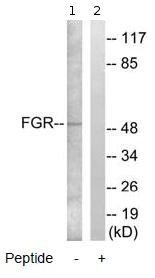 Western blot - FGR antibody (ab79357)
