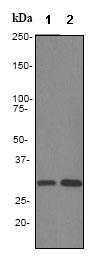 Western blot - Anti-Hex antibody [EPR3361] (ab79392)