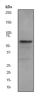 Western blot - Estrogen Receptor alpha antibody [EPR703(2)] (ab79413)