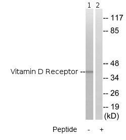 Western blot - Vitamin D Receptor  antibody (ab79513)