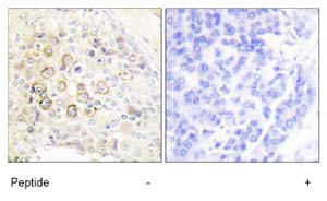 Immunohistochemistry (Formalin/PFA-fixed paraffin-embedded sections) - ErbB 3 antibody (ab79537)